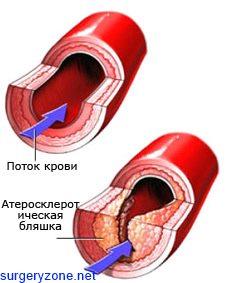 облитерирующий атеросклероз