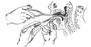 инородное тело гортани