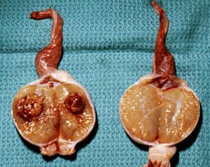 симптомы рака яичка