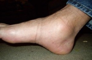 отек ноги в щиколотке