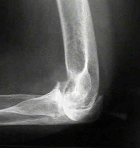 воспаление ревматоидного артрита