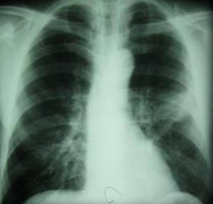 периферический рак легких на рентгене
