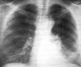 центральный рак легкого на рентгене