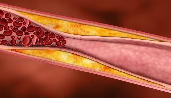 Aтеросклероз брахиоцефальных артерий