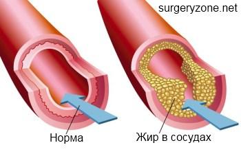 заболевания периферических сосудов