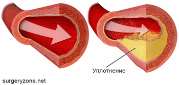обследование артерий нижних конечностей