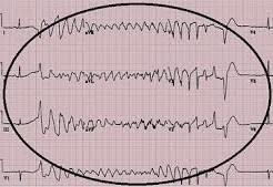 аритмия при инфаркте