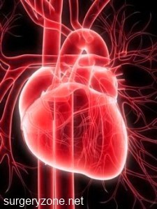 безболевой инфаркт