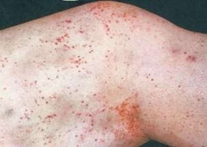 геморрагический васкулит у взрослых