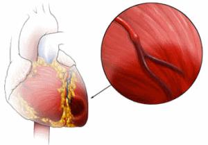 инфаркт миокарда неотложная помощь