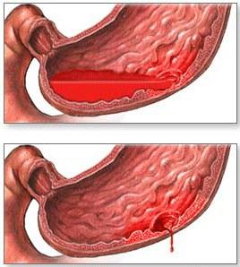 кишечное кровотечение