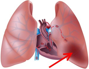 тромбоэмболия при беременности
