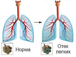 лечение отека легких