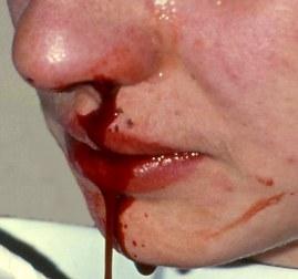 носовые кровотечения у взрослых