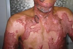 ожоговая болезнь