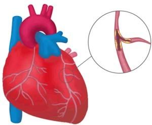 осложнения инфаркта