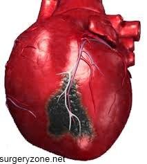 прогноз при инфаркте миокарда