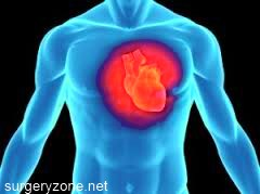 прогноз при кардиосклерозе