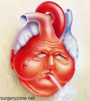 сердечная недостаточность при инфаркте