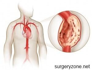 симптомы атеросклероза аорты