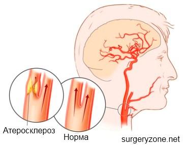 ангиография сонной артерии