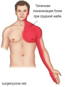 симптомы грудной жабы