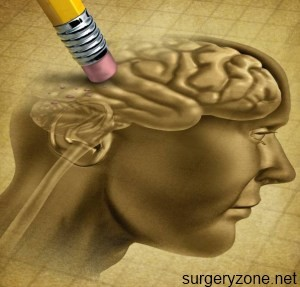 симптомы старческого склероза
