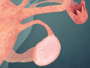 опухоли маточных труб
