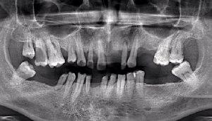 Диагностика поражения фуркации многокорневых зубов