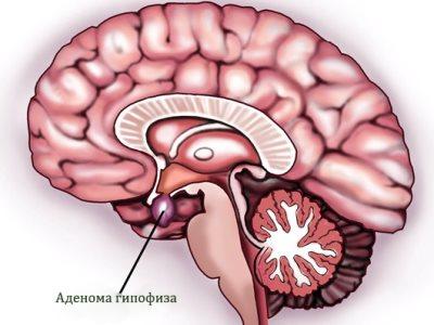 Последствия аденомы гипофиза головного мозга