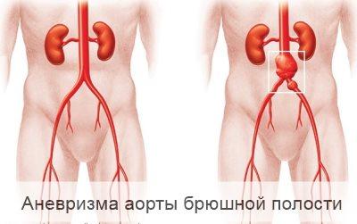 Симптомы аневризмы аорты брюшной полости