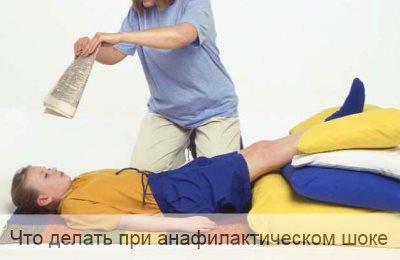 Что делать при анафилактическом шоке