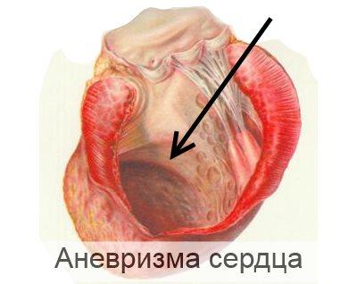 аневризма сердца у детей