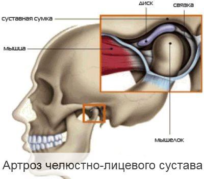 артроз челюстно лицевого сустава