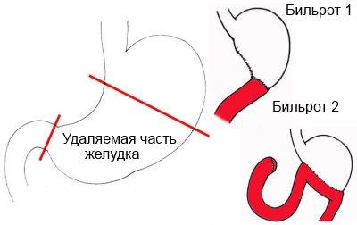 бильрот 1
