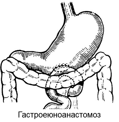 гастроеюноанастомоз