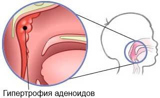 гипертрофия аденоидов