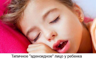 как определить аденоиды у ребенка