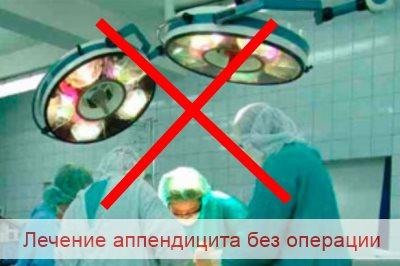 лечение аппендицита без операции