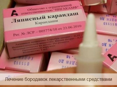 лечение бородавок лекарственными средствами