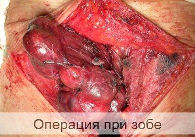 операция при зобе