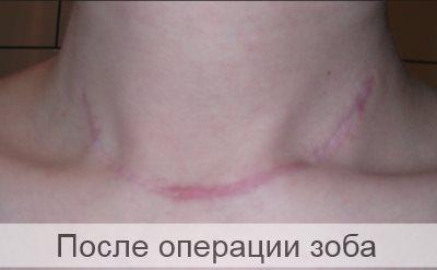после операции зоба