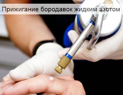 прижигание бородавок жидким азотом