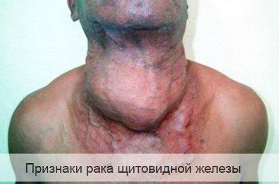 признаки рака щитовидной железы