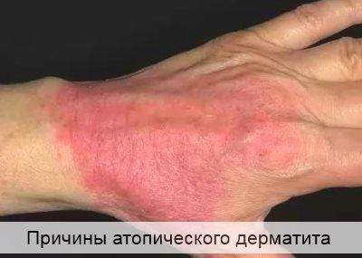 причины атопического дерматита у взрослых
