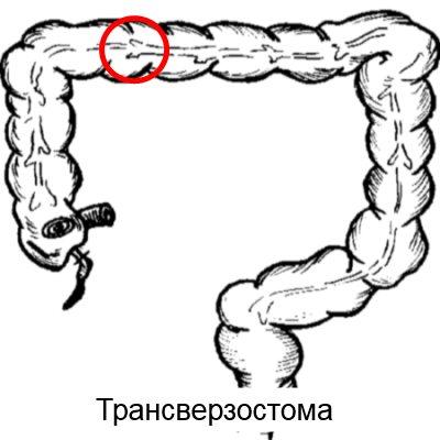трансверзостома