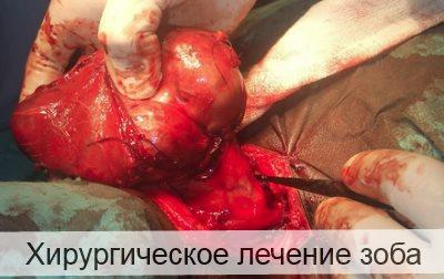 хирургическое лечение зоба