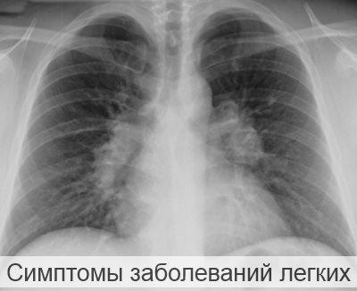 Симптомы заболеваний легких