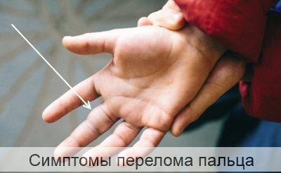 Симптомы перелома пальца на руке