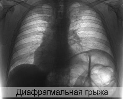 диафрагмальная грыжа